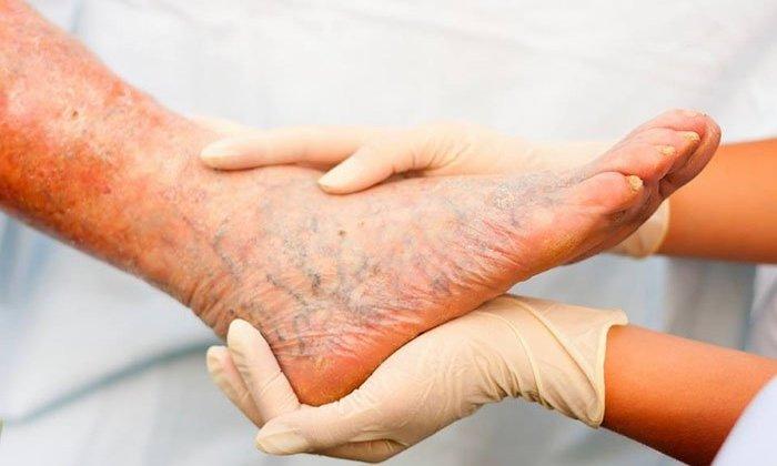 Препарат назначают для лечения трофических поражениях кожных покровов