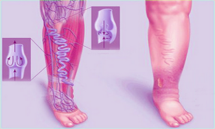 Препарат назначают для лечения венозной недостаточности нижних конечностей