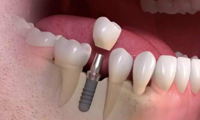 Ультракаином пользуются для протезирования и косметических процедур на зубах и слизистой ротовой полости