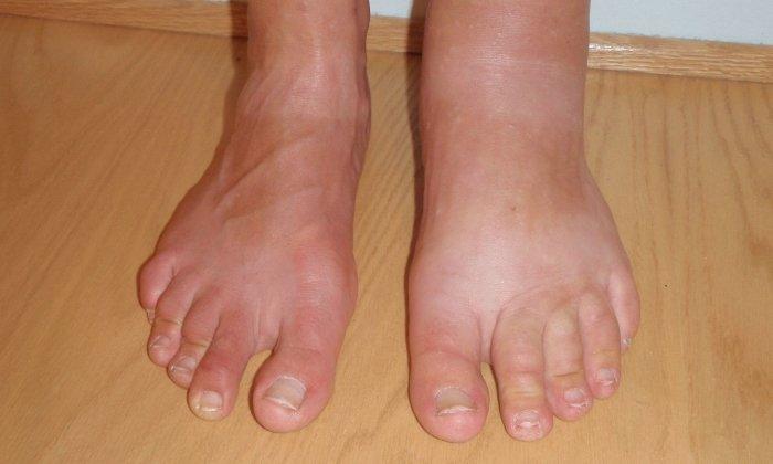 Детралекс чаще всего назначают при отеках ног