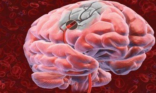 Цераксон укрепляет оболочки и предотвращает повреждение и отмирание клеток
