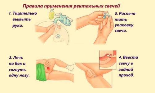 В инструкции по применению указано, что Натальсид предназначен для ректального применения