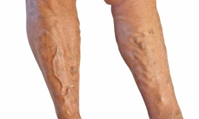 Лиотон применяется при варикозе и флебите вен нижних конечностей