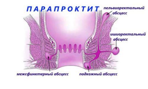 Если воспаление не лечить, начинается нагноение подкожной клетчатки в аноректальной зоне, или парапроктит