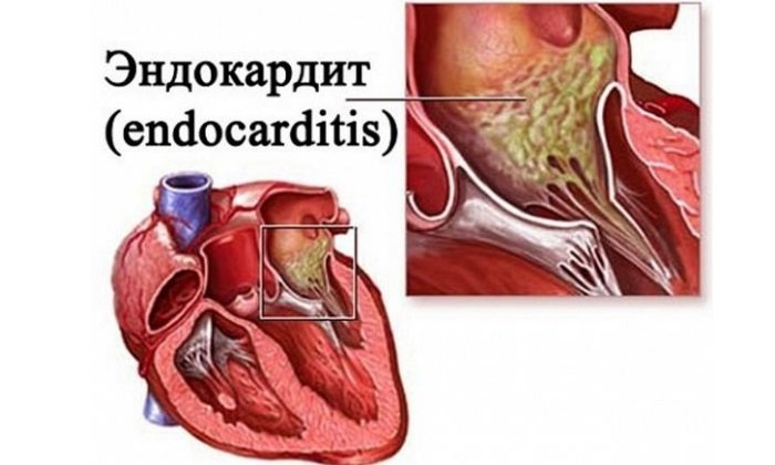 Врачи не назначают Этоксисклерол при эндокардите