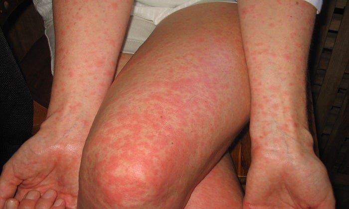 Редким побочным эффектом на нанесение Бепантена может стать появление гиперемии кожи