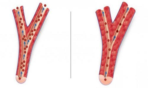 Магния сульфат блокирует функцию кальциевых каналов. Благодаря этому уменьшается интенсивность судорожных сокращений мышц