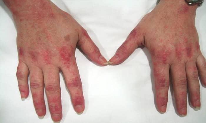Цинк является одним из наиболее эффективных средств для лечения микробной экземы