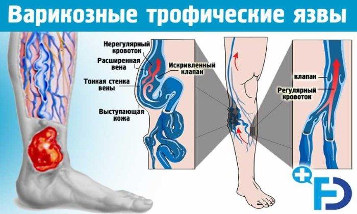 Детралекс чаще всего назначают при венозных трофических язвах