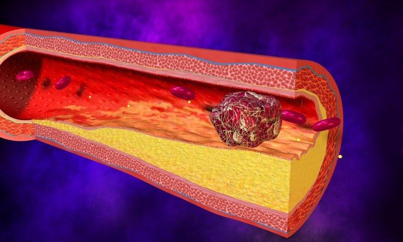 Препарат используется для лечения венозно-лимфатической недостаточности