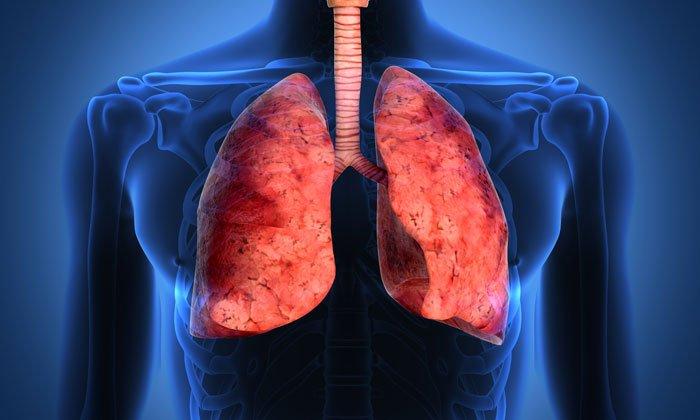 Воспаление легких - одно из показаний к применению Бифидумбактерина