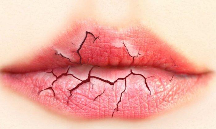 Трещины губ поможет убрать Прополис Гелиант