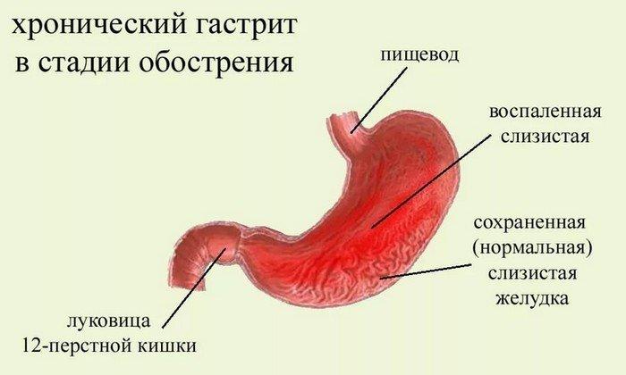 Нормоэнзим назначают при хронических воспалительных процессах в желудочно-кишечном тракте, которые носят дистрофический характер (хронический гастрит, энтероколит кишечника)