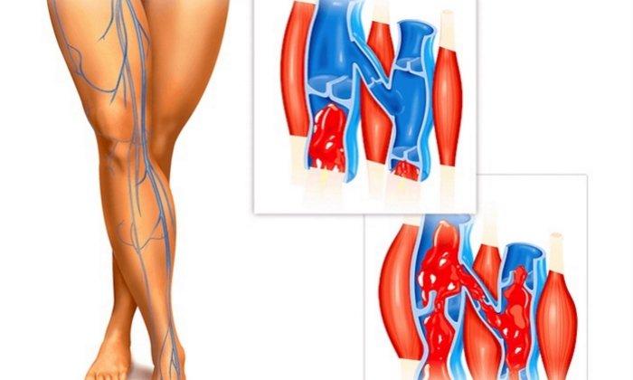 Антистакс применяют при венозной недостаточности