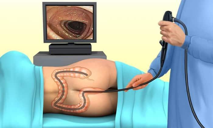 Лекарство назначают пациентам перед проведением инструментальных и рентгенологических обследований