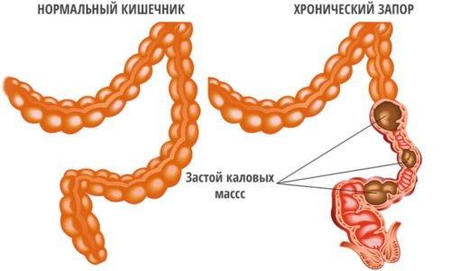 Применение препарата позволяет опорожнить и очистить кишечник больного