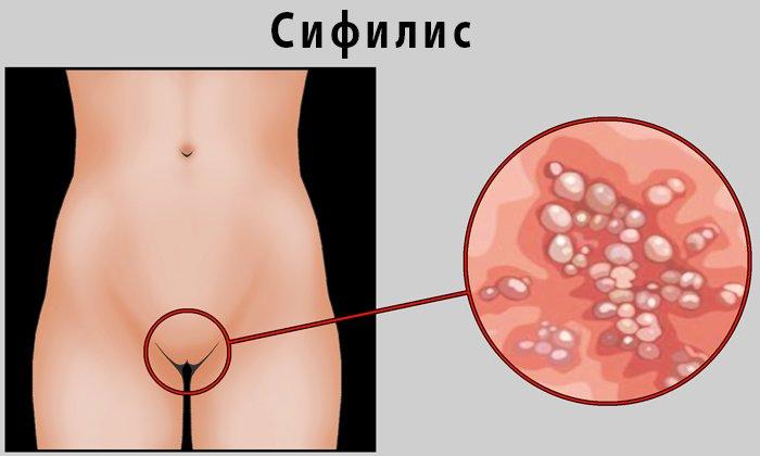 Запрещено лечение Гепатромбином Г при сифилисе
