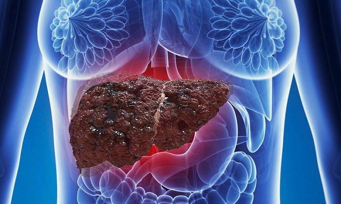 Гипосульфит натрия следует назначать с осторожностью при наличии в анамнезе цирроза печени
