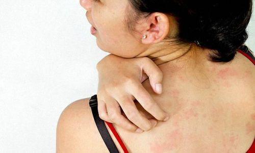 При использовании Дексаметазона и Новокаина может быть аллергическая реакция