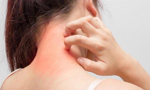 В ряде случаев употребление препарата в большом количестве может способствовать развитию аллергизации кожи