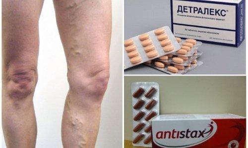 При нарушении функциональности сосудов специалисты рекомендуют Антистакс или Детралекс