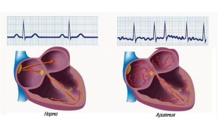 При передозировке Папаверина, а также при быстром инъекционном введении возможны нарушения сердцебиения