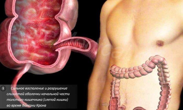 Болезнь Крона - противопоказание к использованию Легколакса