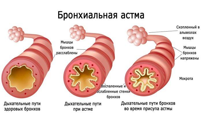 Не рекомендуется прием препаратов при бронхиальной астме