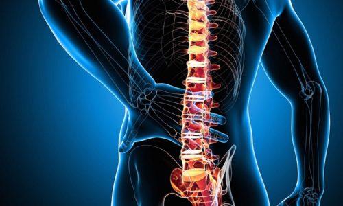 При невралгии рекомендуется при помощи ватного диска нанести средство на болезненный участок спины, не затрагивая область позвоночника