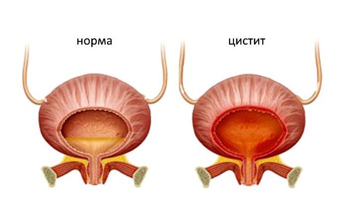 Острая форма цистита является причиной для назначения лекарства