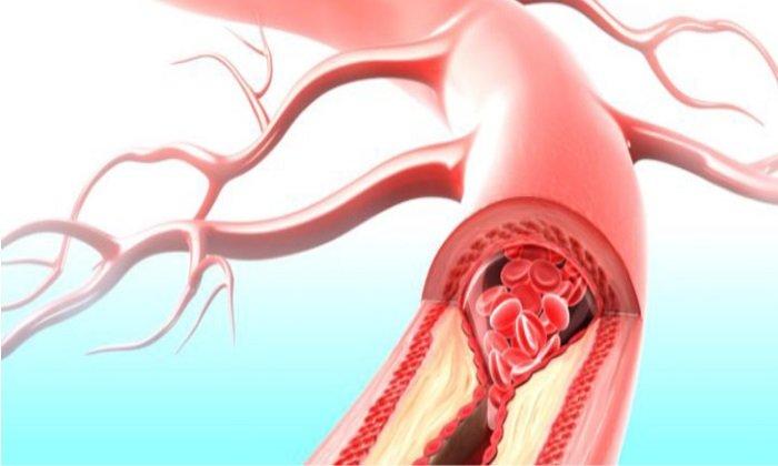Детралекс 1000 влияет на уменьшение застаивания крови в венах