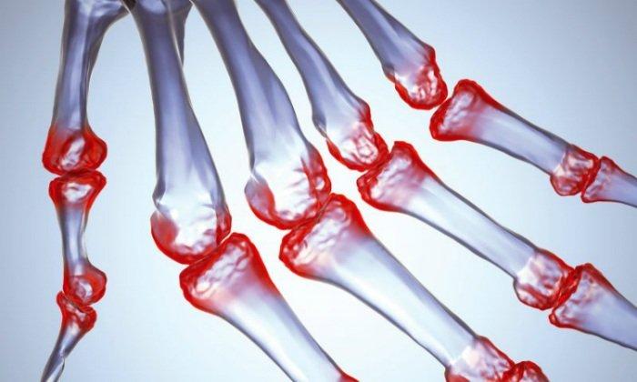 Димексид, Новокаин и Анальгин эффективны при лечении артрита