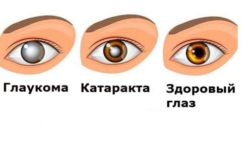 Применение препаратов Димексид, Новокаин и Анальгин противопоказано при катаракте и глаукоме