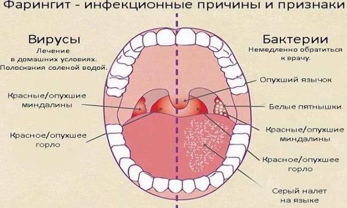 Дезоксинат показан к применению в отоларингологии: фарингит