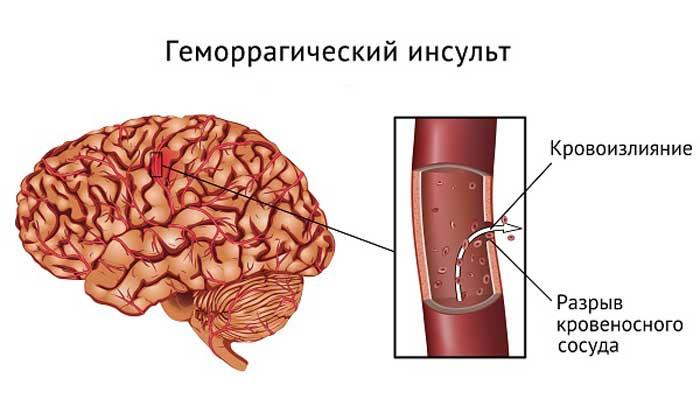 Средство применяется для лечения геморрагического инсульта