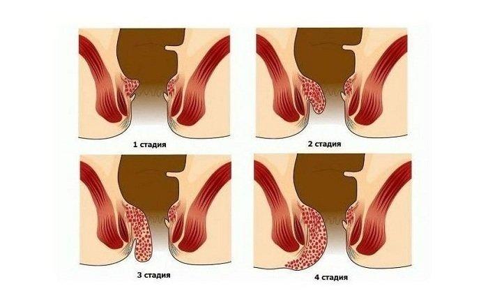 Воспалительный процесс в геморроидальных узлах на 3-4 стадии и возникновение осложнений часто сопровождается сильной болью
