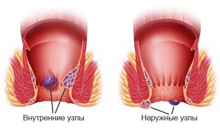 Совместное применение препаратов показано при геморрое