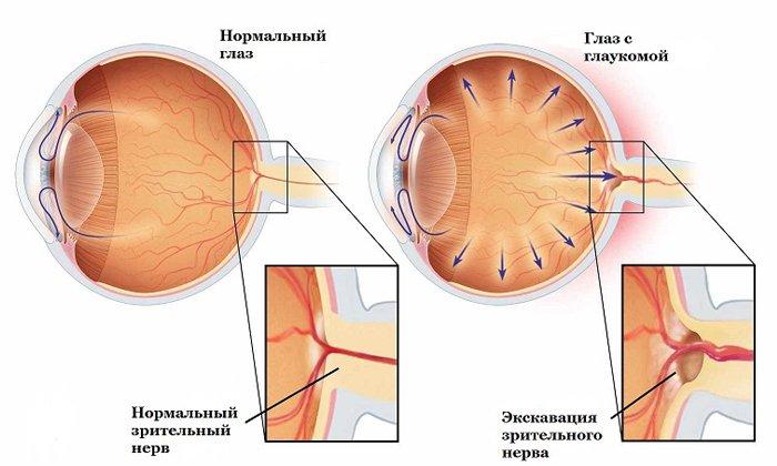 При глаукоме препарат не назначают