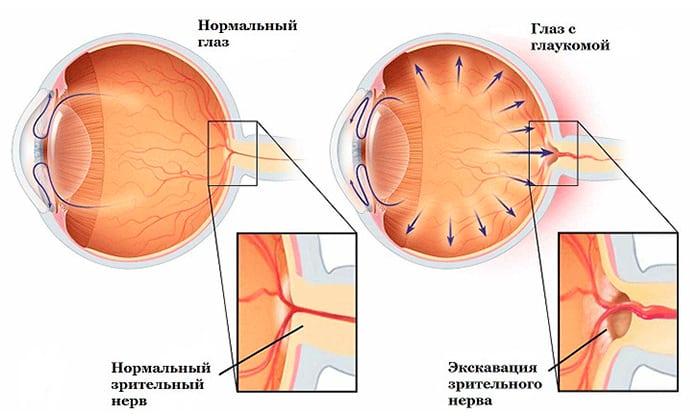 Не рекомендуется использовать препараты при глаукоме
