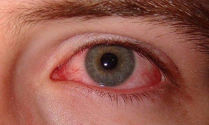 Гнойно-воспалительные патологии глаз - одно из показаний к применению препарата