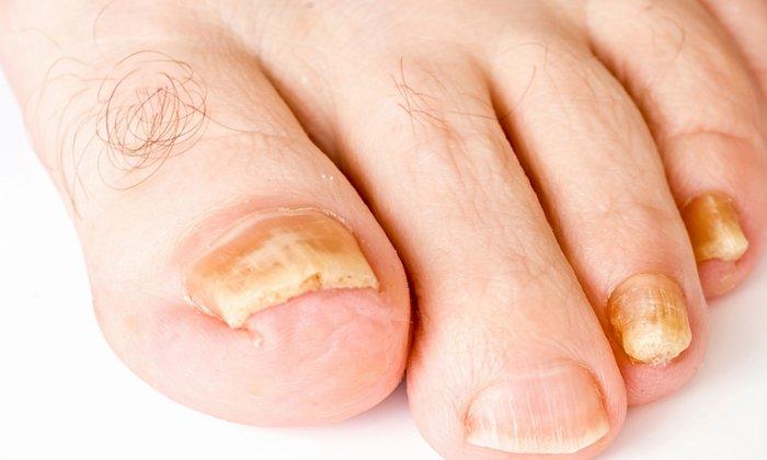 Примнеяют лекарство при грибковых поражениях кожи и ногтей