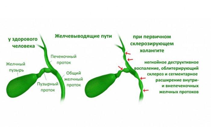 Препараты применяют совместно при холангите