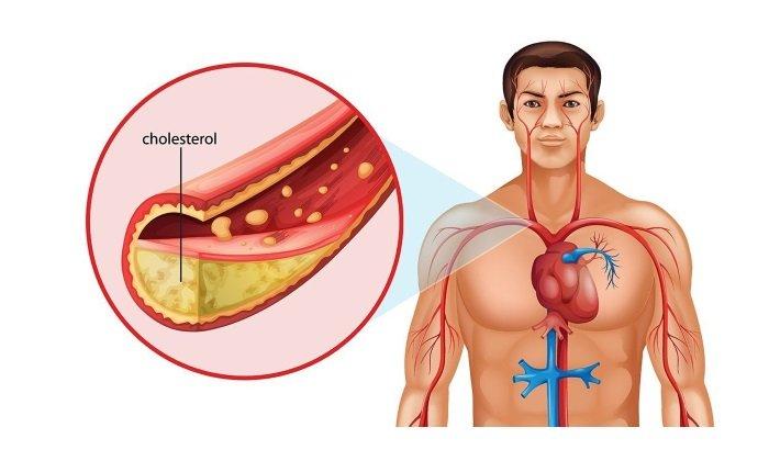 Хофетол оказывает положительное влияние на метаболизм жиров и холестерина
