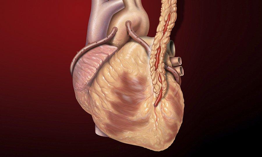 Актовегин используют при лечении ишемической болезни сердца