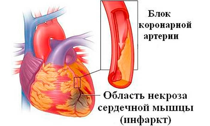 Дезоксинат показан к применению в кардиологии: инфаркт миокарда