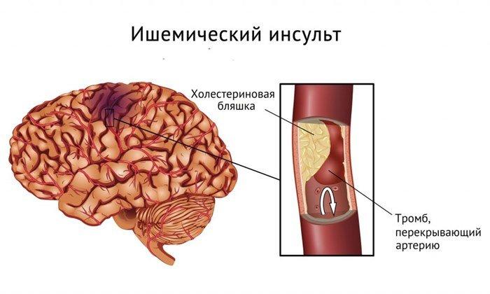 Средство применяется для лечения ишемического инсульта