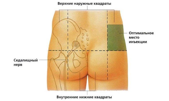 Раствор вводят медленно и глубоко в ягодичную мышцу