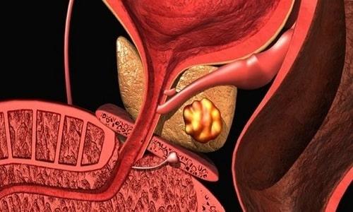 Аденокарциномой предстательной железы (железистым раком) называется злокачественная опухоль