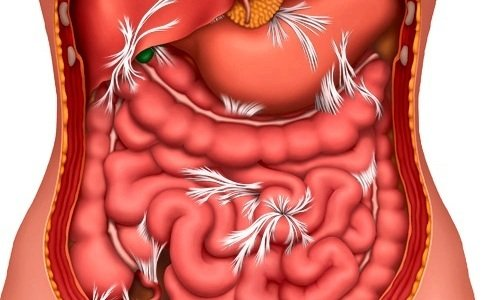 Препарат не используют при кишечной непроходимости