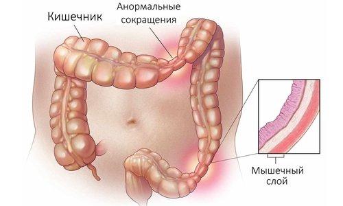 Тримедат устраняет кишечные спазмы и колики
